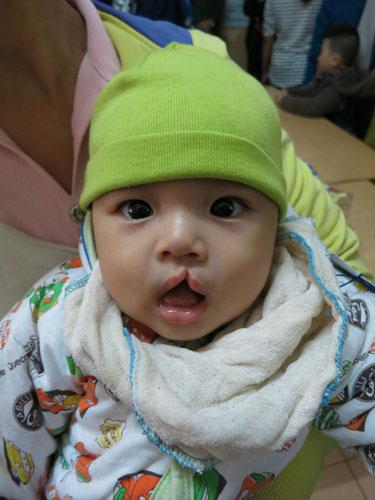 Phẫu thuật Nụ cười trẻ em Việt Nam Phẫu thuật Nụ cười trẻ em Việt Nam GM Việt Nam tài trợ phẫu thuật Nụ cười cho hơn 40 trẻ em Việt Nam operation smile 20 3